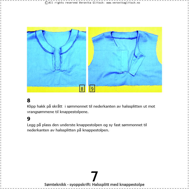 Halssplitt med knappestolpe, somteknikk6
